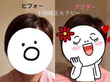 若々しく可愛らしく変身しました〜!!!⭐︎小顔サロン旭川ライフデザイン 大上奈美
